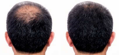 Mezoterapia hair